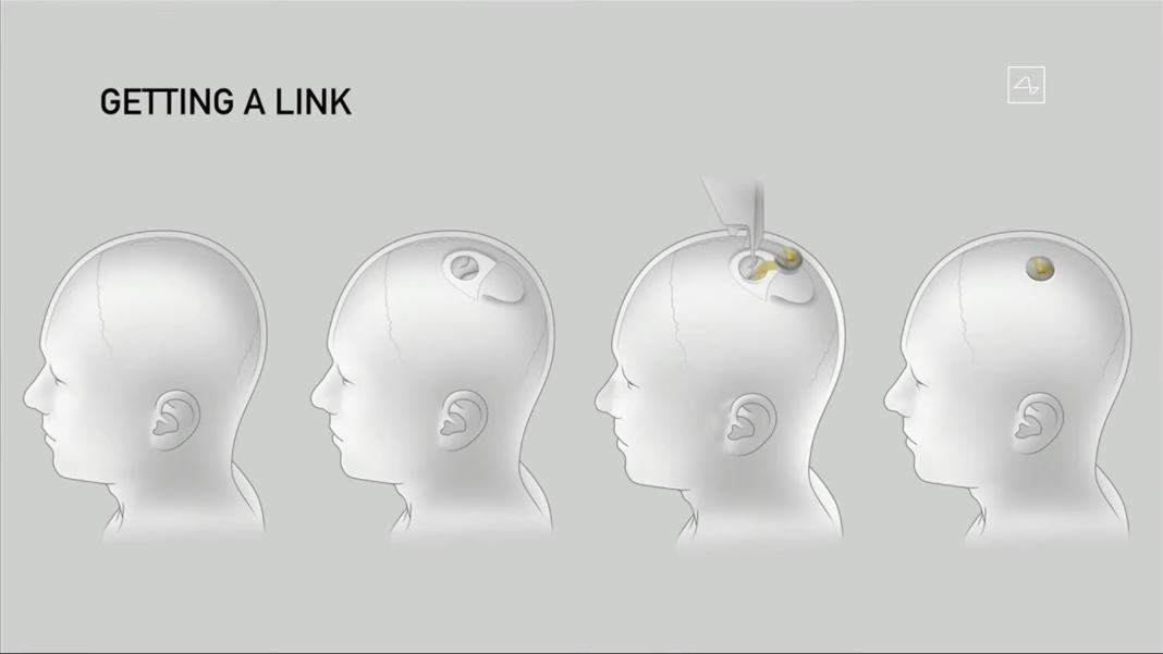 Neuralink Beyne Yerleştirilme işlemi